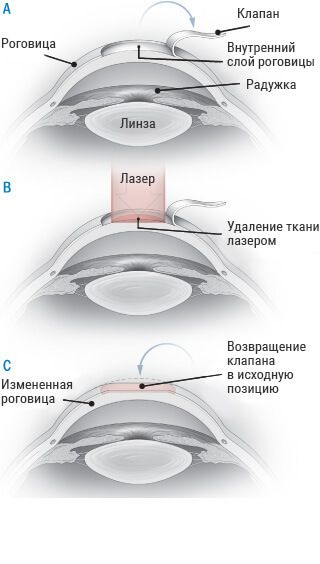Методика ЛАСЕК. В деяких випадках лазерна корекція ... eef0167afcff1